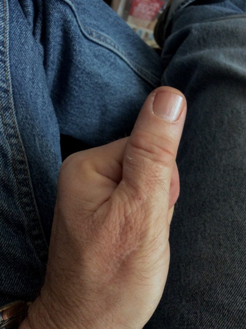 My left thumb