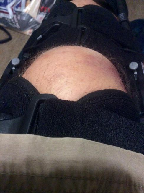 Swollen knee abstraction