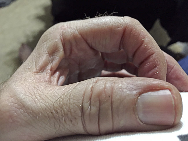 My left thumb